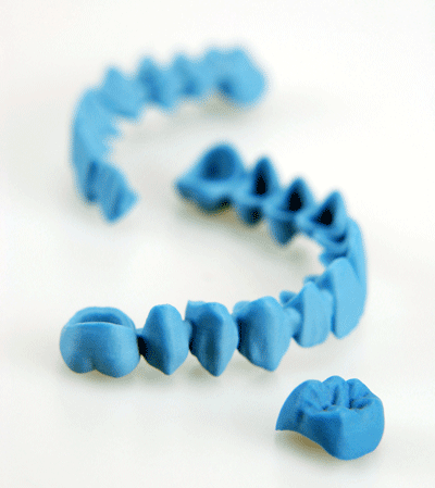 dental-bridge-and-crown-solidscape-400px